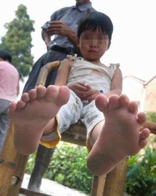 女孩长14只脚趾 无法穿普通鞋子只能穿拖鞋图