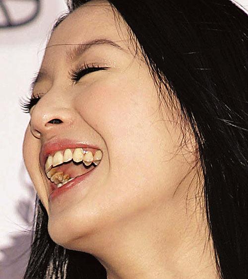 曾大美女该整整牙齿了!