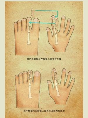 图为手指脚趾关节互换示意图.曾赛华 戴莹芳 绘-手指有问题高考 匡瓢