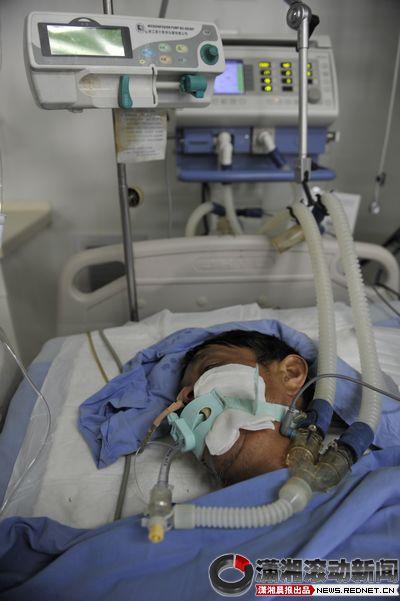 """昨日,长沙市八医院ICU病房,处在昏迷中的""""王平阳"""".图/潇湘晨图片"""