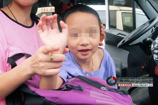 """儿童 螃蟹/(8月22日上午,8岁的子玉经过""""螃蟹手""""矫正手术,手已经康复,..."""