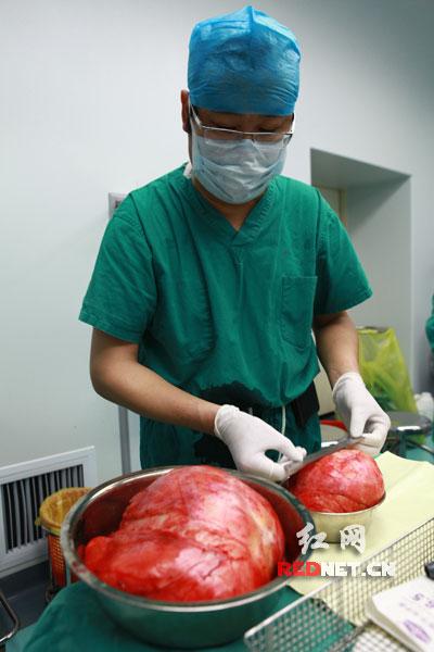 在長沙湘雅醫院做個包皮手術,從住院到出院,大概要多少錢啊圖片