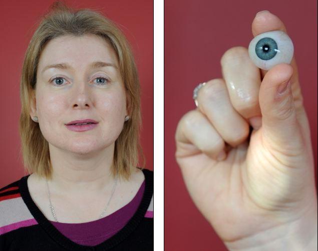 眼球摘除_由于担心真菌感染加重,医生不得不将斯通的左眼摘除,并换成了假体眼球