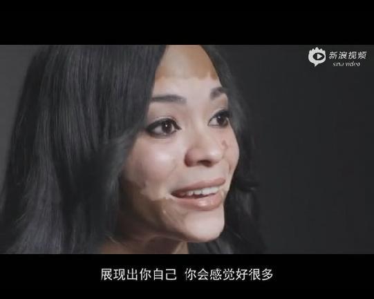 [自白]白癜风黑白的女孩:我找回了自信你也的qq头像a自白视频女生图片