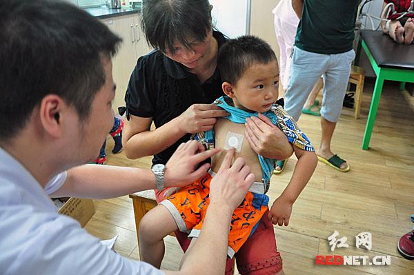 湖南省儿童医院医生为一名儿童贴上改良后的儿童敷贴.